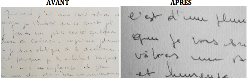 Femme soufrant de tremblements rendant le geste d'écrire particulièrement difficile